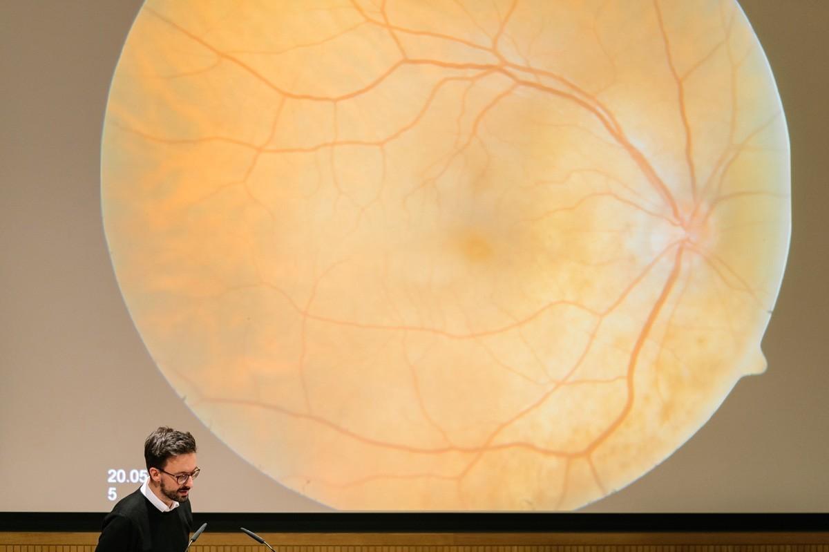 Mammakarzinom-Metastasen im Auge – das hat man nicht alle Tage.